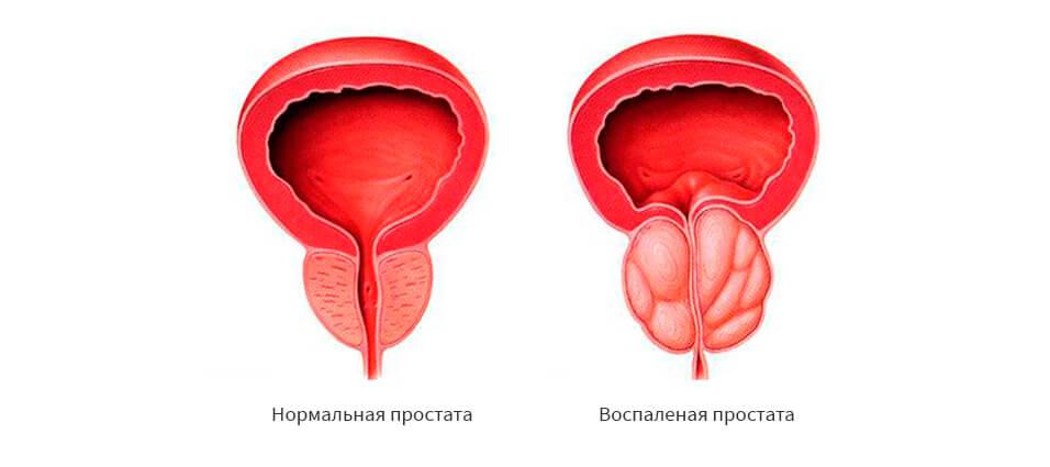 Отсутствие сперматозоидов из за простатита какой корень лечит простатит