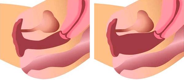 Лечить синдром вагинальной релаксации   МЦ