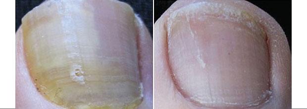 Большие пальцы ног грибок