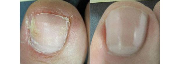 Лечение ногтевого грибка на ногтях йодом