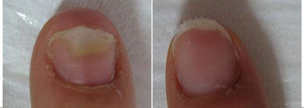 Пожелтение ногтей на ногах лечение