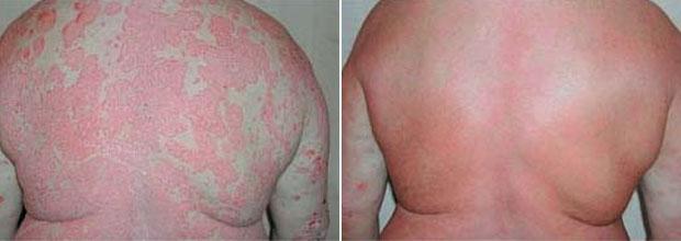 псориаз лечение до и после фото