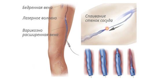 домашнее лечение паразитов