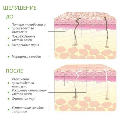 С чем связано старение плаценты