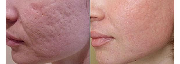 Маска для лица очищающая и выравнивающая кожу